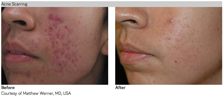 pronutra smooth skin side effects